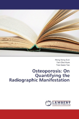 Osteoporosis: On Quantifying the Radiographic Manifestation