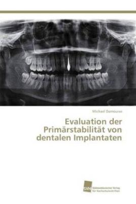 Evaluation der Primärstabilität von dentalen Implantaten
