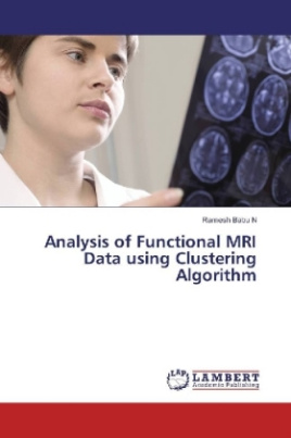 Analysis of Functional MRI Data using Clustering Algorithm
